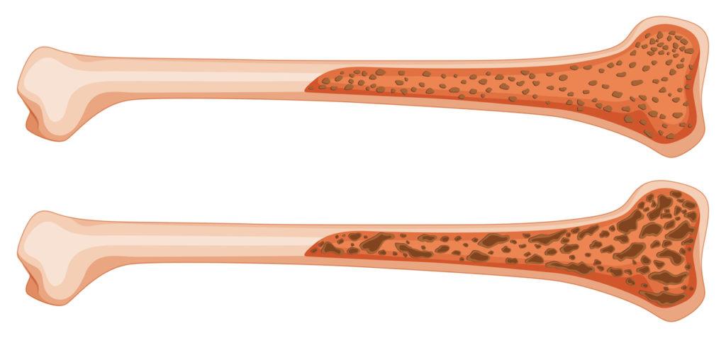 Knochen mit Osteoporose