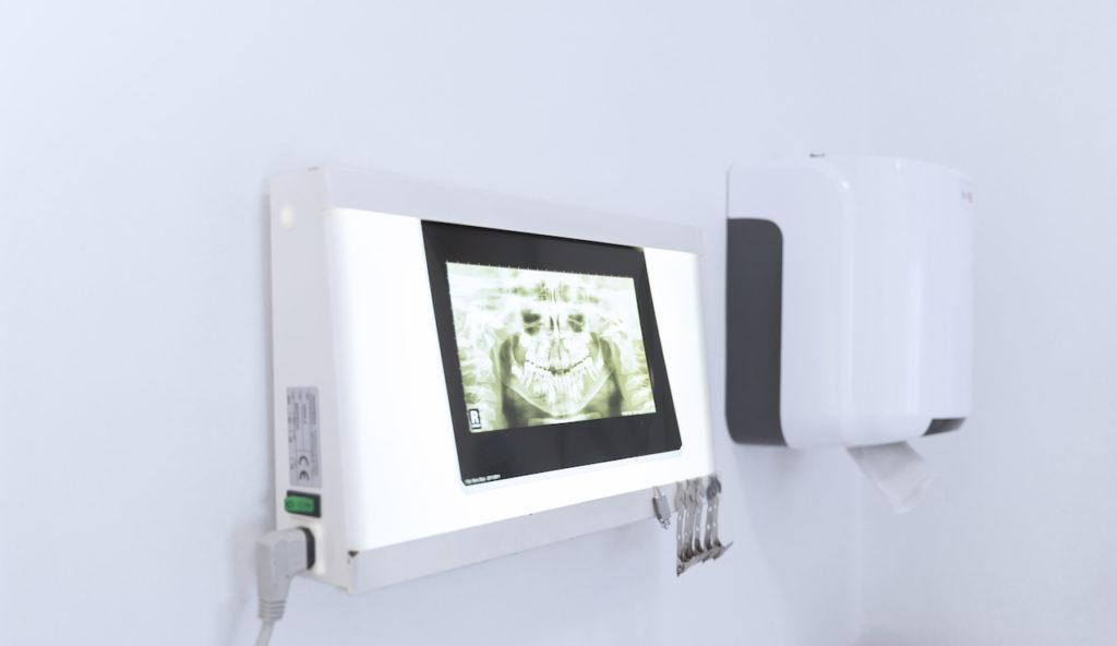 Röntgenaufnahme vom Gebiss