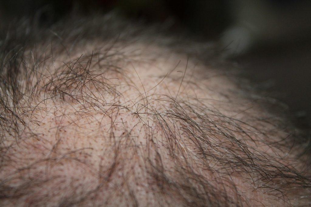 Zink hilft bei Haarausfall